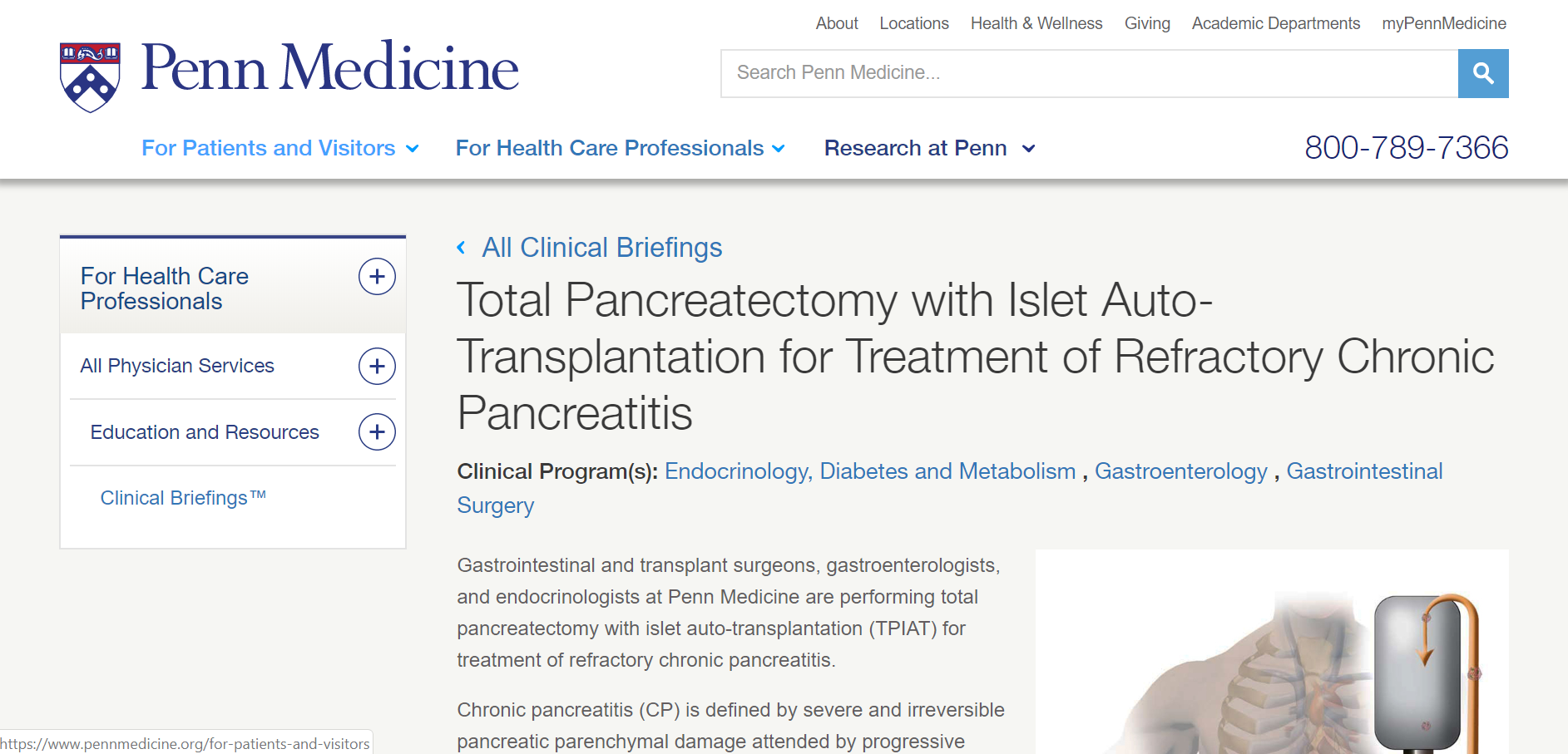 Penn Medicine, Total Pancreatectomy with Islet Auto-Transplantation for Treatment of Refractory Pancreatitis, Clinical Program for Diabetes